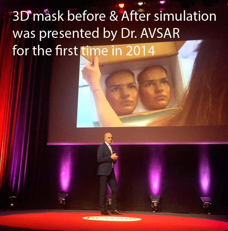 3d Mask Rinoplasti