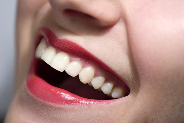 diş etleri